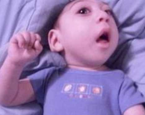 小儿癫痫病如何治疗